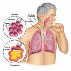 Akciğeri temizlemenin doğal yolları