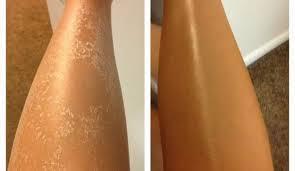 Bacaklar nasıl yumuşak olur?
