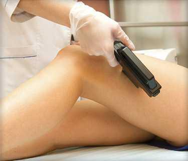 lazer-epilasyon-avantajlari