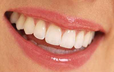 Güzel ve sağlıklı dişlerin formülü